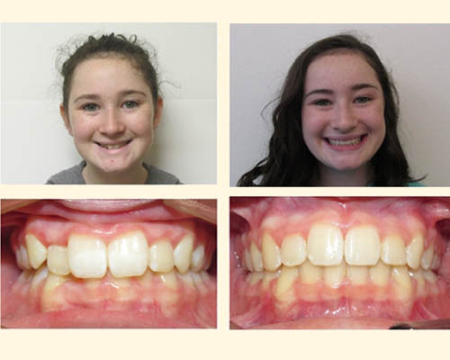 Before And After Gallery Perlot Orthodontics